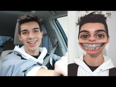 Getting My Braces Tightened for the First Time + 1 Month Update
