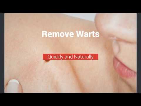 How to Remove Ugly Warts Easily: 3 Tips to Remove Warts from Hands, Arms, and Face