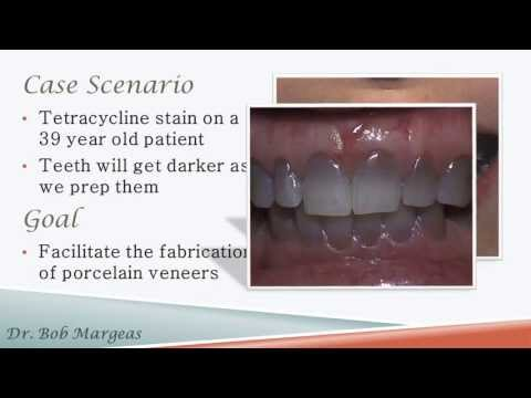 Porcelain Veneers: Subopaquing, Provisionalization and Final Cementation