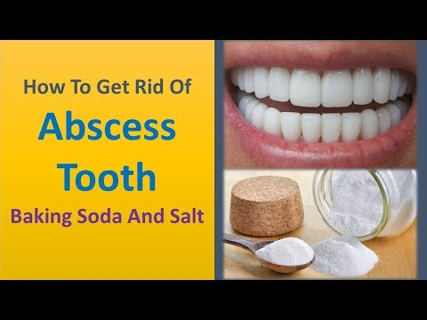 how to get rid of abscess tooth - Baking Soda and Salt