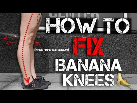 How to Fix Banana Knees (Knee Hyperextension) - Functional Leg Training
