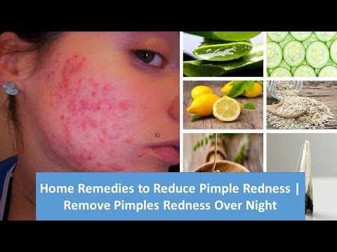 Home Remedies to Reduce Pimple Redness | Remove Pimples Redness Over Night