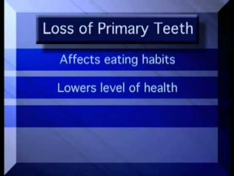 PRIMARY TEETH IMPORTANCE