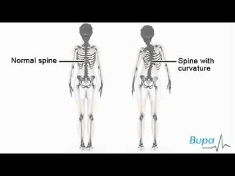 How idiopathic scoliosis occurs ???