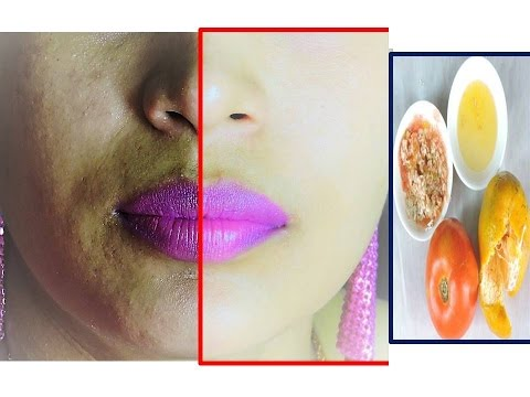 2 Best Tips for Remove of Uneven Skin Tone and get Fair Skin at home in Hindi