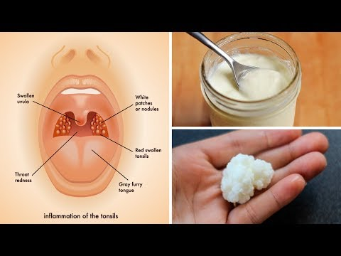 3 Powerful Home Remedies for Tonsillitis That Work Fast!