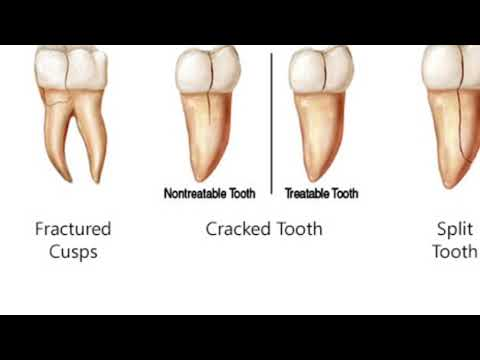 Cracked Tooth - Causes and Treatment for cracked teeth