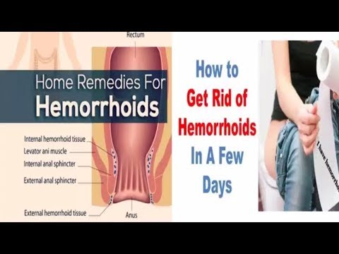 how to heal hemorrhoids - how to get rid of hemorrhoids naturally