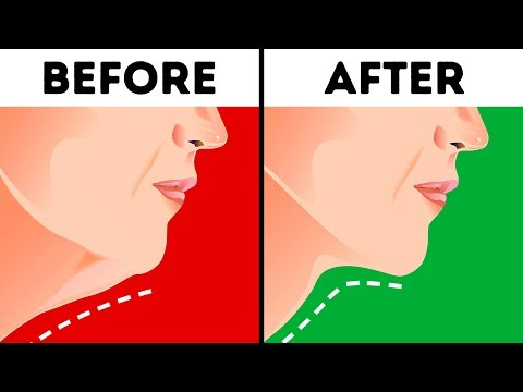 6 Effective Ways to Get Rid of a Double Chin