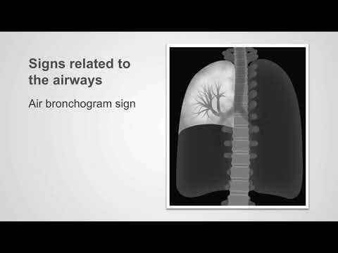 Trachea and bronchi—common pathology