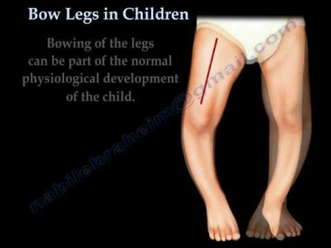 Bow Legs In Children - Everything You Need To Know - Dr. Nabil Ebraheim