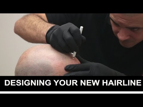 Designing Your New Hairline with Scalp Micropigmentation