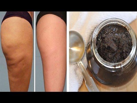 😘2 Ingredients Anti Cellulite Paste! The Magic Cellulite Eraser