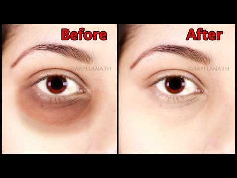 Get Rid of Under Eye Dark Circle, Puffiness, Fine Lines in 1 Week || Magical Eye Mask