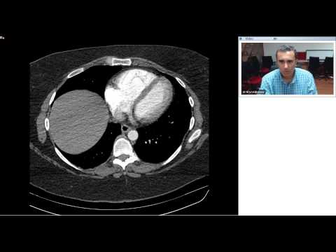 Radiology Teaching On Pulmonary Embolism Dr AK    with video 1