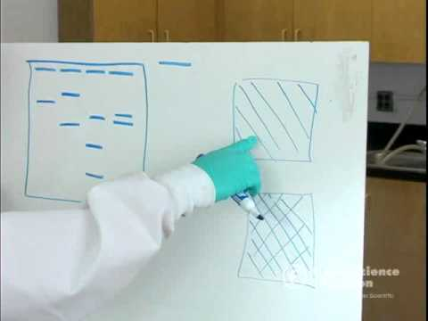 Electrophoresis: How to Read Results