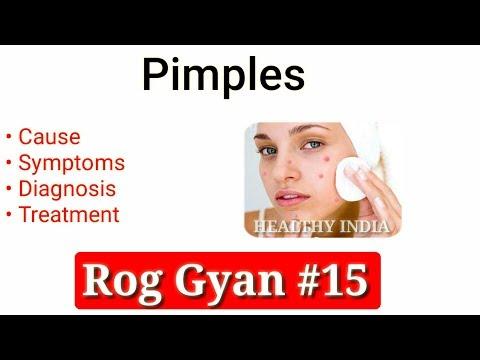 Rog Gyan #15 - Pimples Causes, Symptoms, Diagnosis & Treatment