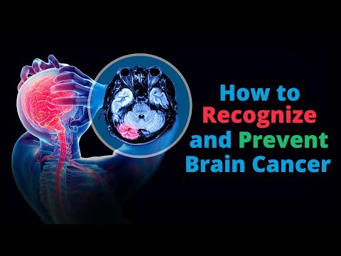Brain Cancer: Warning Signs and How To Prevent It
