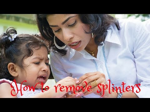 5 Fast and painless ways to remove splinters