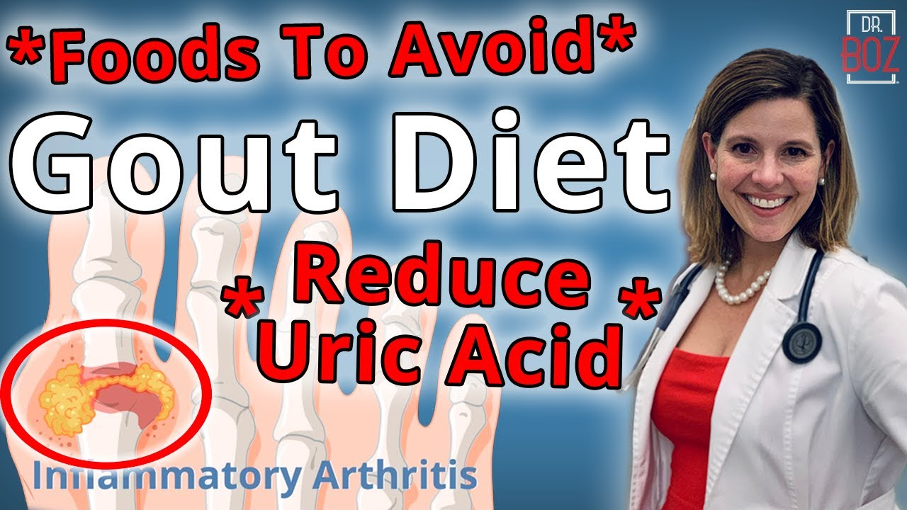 Best Gout Diet, What Causes Uric Acid & How to Reduce Uric Acid - Dr. Boz