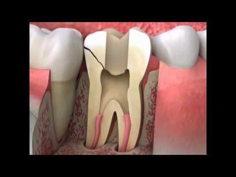 Cracked Tooth Symptoms | Lake Merritt Dental, Oakland, CA