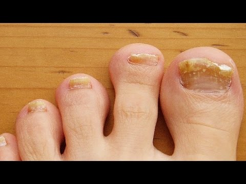 Home remedies for brittle nails   Treatment for brittle nails