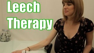 Leech Therapy - Leeches on the Skin of a Woman