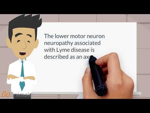 Lyme disease motor neuron neuropathy