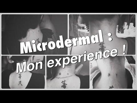 ♡ Retrait des pierçings microdermal : Mon expérience !