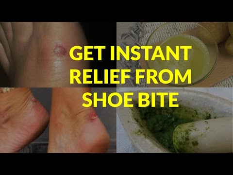 Home Remedies to Get Instant Relief from Shoe Bite and Scars | That are Very Effective | Health Tips