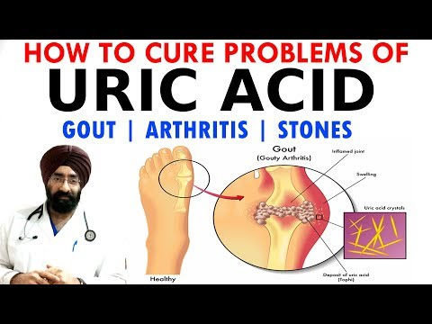 HOW TO CURE - URIC ACID PROBLEMS | GOUT | ARTHRITIS | STONES | DIET & why it happens? | Dr.EDUCATION