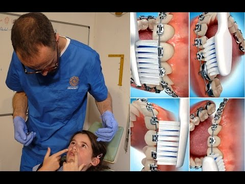 Maintenance of Oral Hygiene While Wearing Removable Orthodontic Inman Aligners by Dr Mike Mew