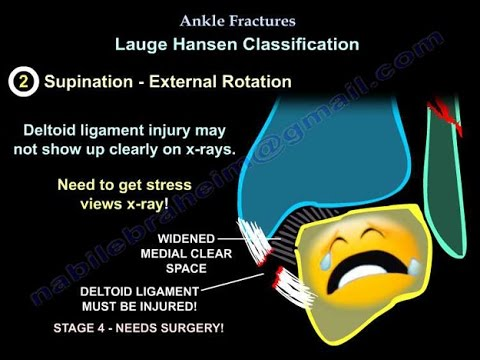 Ankle Fractures - Everything You Need To Know - Dr. Nabil Ebraheim