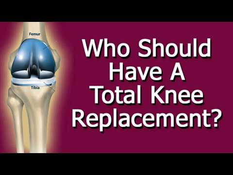 Who Should Have A Total Knee Replacement?