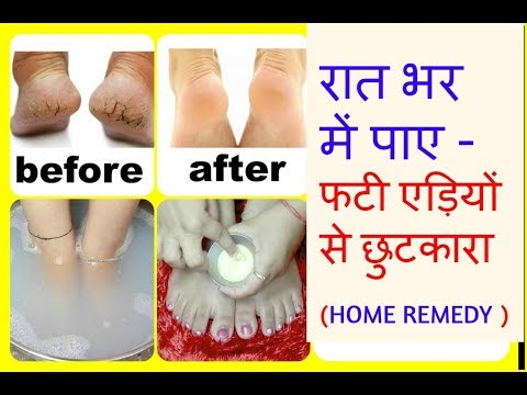 get rid of CRACKED HEELS OVERNIGHT at HOME | get SOFT FEET ||  naturally ||