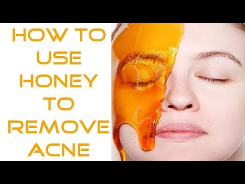 How to Use Honey to Remove Acne (Fast and Naturally)   Get Clear Skin