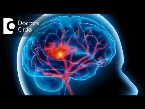 What is Mini Stroke & its symptoms? - Dr. Tejus MN Rao