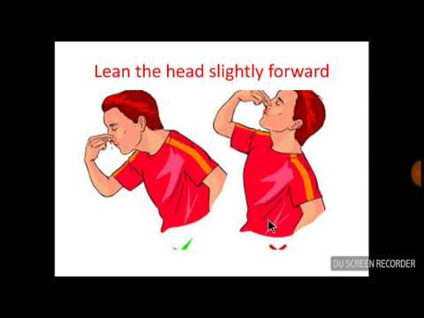How to stop nosebleed