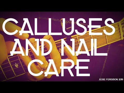 Guitarist Calluses and Nail Care: Handy Tips