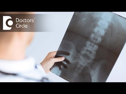 When should one go for MRI scan & CT scan for spine for low back pain? - Dr. Kodlady Surendra Shetty