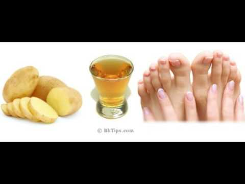 Potato juice to remove tan from feet and legs