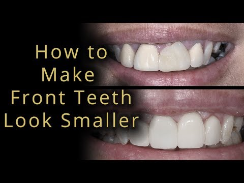 How to make front teeth not stick out