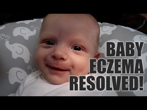 Baby Eczema Resolved -- After Only 2-Days of Treatment!