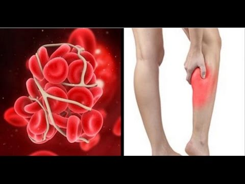These Are The Symptoms and Signs You May Have a Blood Clot in Your Leg