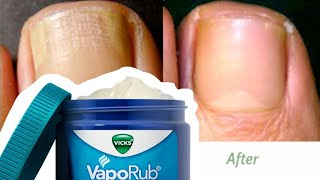 vicks vapor rub toenail fungus Videos - 9tube.tv