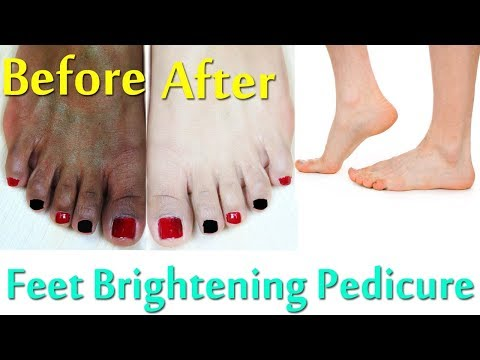 Pedicure | Feet Brightening Pedicure at Home Naturally to Remove Suntan, Sunburn, And Dark Spots