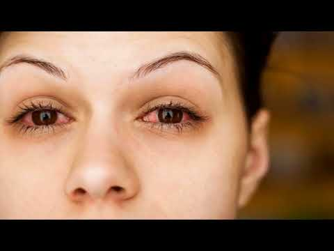 Effective Home Remedy For Red Eyes Is Artificial Tear - How To Use