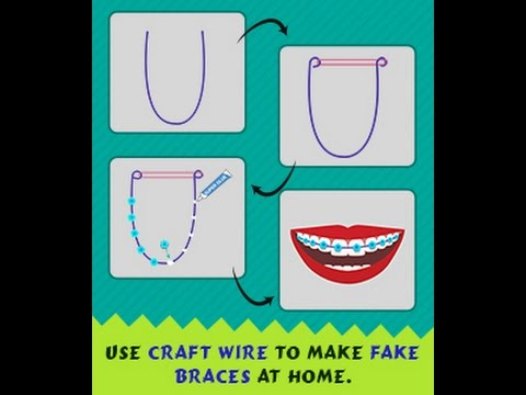 DIY Guide on How to Make Fake Braces That Look Real