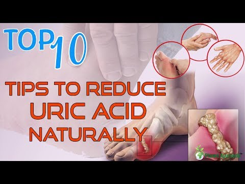 Top 10 Tips To Reduce Uric Acid Naturally   Home Remedies for Gout Treatment