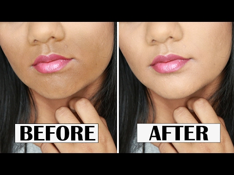 HOW TO CONCEAL DARKNESS AROUND YOUR MOUTH | ZAHRAH ALIYAH
